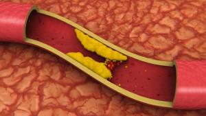 podzheludochnaya-zheleza-holesterin